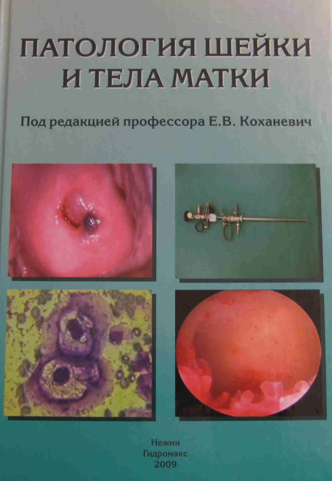 Фото пособие для гинеколога 9 фотография